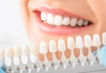 Reasons to Choose Dental Implant